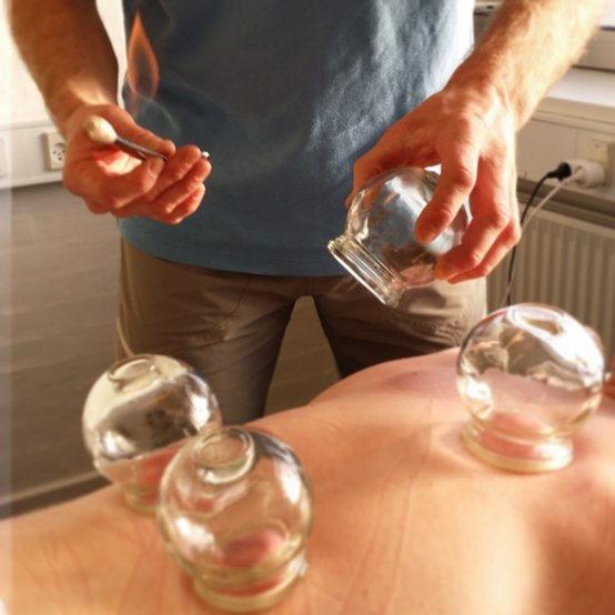 Cupping-massage er en effektiv behandling.
